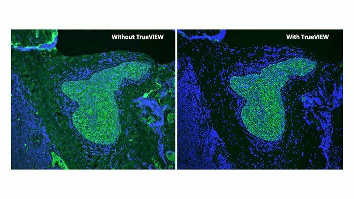 Do you have issues with autofluorescence? Try TrueView!
