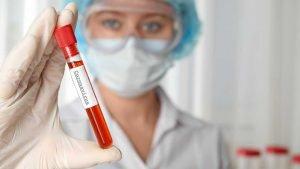 Immunology and Diagnostics